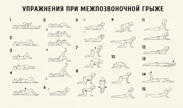 Гимнастика бубновского после операции грыжи позвоночника
